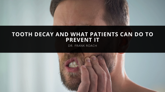 Dr. Frank Roach Discusses Tooth Decay and What Patients Can Do to Prevent It