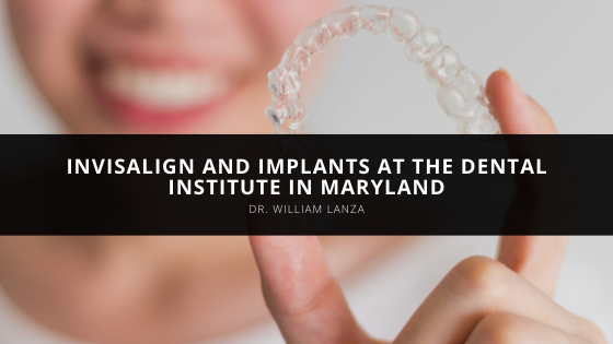 Dr. William Lanza Offers Invisalign and Implants at The Dental Institute in Maryland